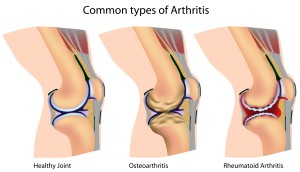 Arthritis-types1