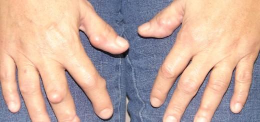 rheumatoid-arthritis.jpg4