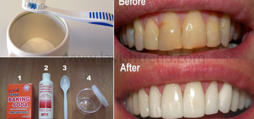 remove-dental-plaques-in-just-5-minutes-check-out-this-natural-method