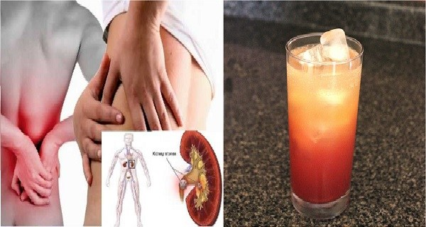 Kidney Stones How To Get Rid Of Them Naturally