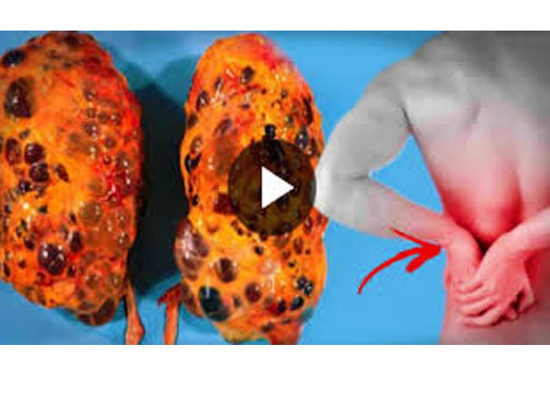 10 Bad Habits That Are Killing Your Kidney (Don't Take No ...