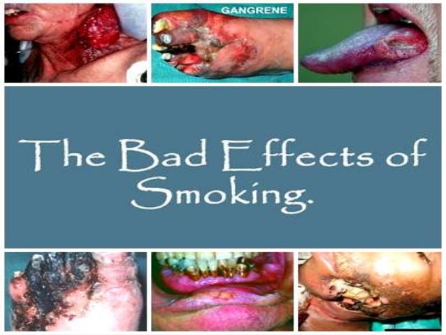 """good and bad effects smoking The good and bad effects of smoking essay sample smoking is good for in many ways including making you live longer although most text books and """"experts"""" say that smoking is bad for you, there are also many other people who disagree and say it has many curing properties."""